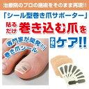 【ゆうメール送料無料】巻き爪シール(1か月ケア)巻き爪リフトシール【P2B】