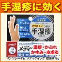 手の痒み メンソレータム メディクイック 軟膏R 8g 湿疹 かぶれ かゆみ 皮膚炎 じんましん あ