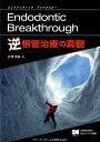 逆根管治療の真髄 Endodontic Breakthrough [ 井澤常泰 ]