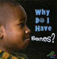 Why_Do_I_Have_Bones��
