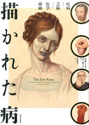 描かれた病 疾病及び芸術としての医学装画 [ リチャード・バーネット ]