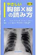 やさしい胸部X線の読み方第2版 [ J.コーン ]の商品画像