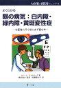 眼の病気:白内障・緑内障・黄斑変性症