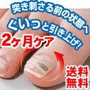シール型巻き爪サポーター 貼る巻爪をストップ  巻き爪シール 2個 ※発送に1週間程度頂きます。巻爪 巻き爪矯正 爪切り つめ切り 巻爪ゲルサポーター