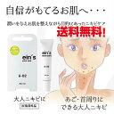送料無料(メール便/DM便)!ein's(アインス) acn...