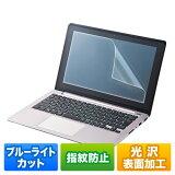 �֥롼�饤�ȥ��åȥե����(15.6���磻���б����վ��ݸ�) LCD-156WBC ����掠�ץ饤