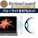 RetinaGuard Macbook ...
