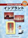 科学が生んだ歯の治療インプラント
