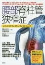 腰部脊柱管狭窄症 トータル・バランス・コンディショニングで動いて良くなる教科書 腰部脊柱管狭窄症のす