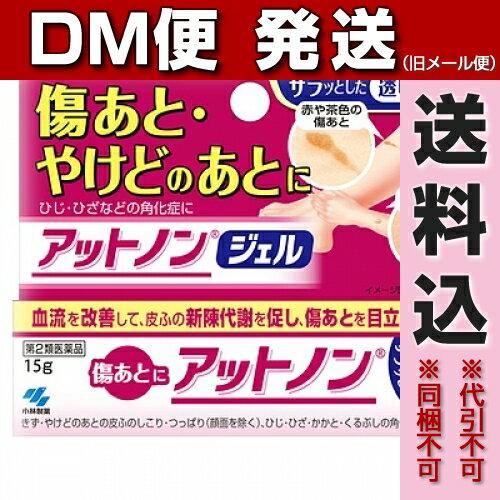 【DM便送料込み】【第2類医薬品】アットノンジェル 15g