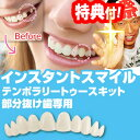 インスタントスマイル テンポラリートゥースキット 部分抜け歯専用 部分付け歯 疑似入れ歯 ワンタッチ