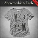 アバクロ Abercrombie&Fitch 正規品 レディース 半袖Tシャツ WOMEN'S T-SHIRTS