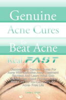 Genuine Acne Cures To Beat Acne Real Fast