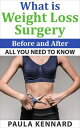 What Is Weight Loss Surgery: All You Need To Know Before And After【電子書籍】[ Paula Kennard ]