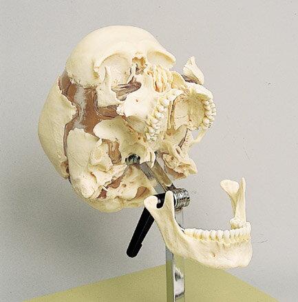 頭蓋骨分解模型 22分解の紹介画像2