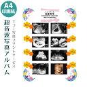 【送料無料】超音波写真アルバム【キュート】バリュー 赤ちゃんのエコー写真プリントサービス 男の子 女の子