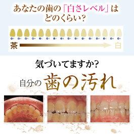 歯の白さレベル