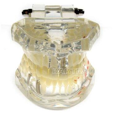 〇メール便無料 歯科模型 歯列 マルチ上下顎模 親知らずから虫歯、インプラントまで