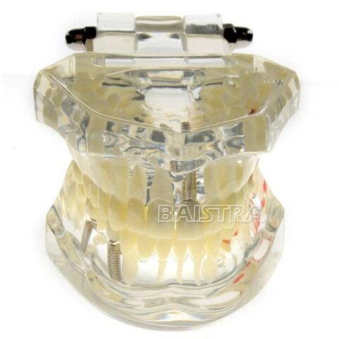 〇歯科模型 歯列 マルチ上下顎模 親知らずから虫歯、インプラントまで