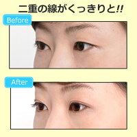 二重瞼形成化粧品【ルドゥーブル4ml】