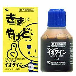 【健栄製薬】ケンエーイオダイン 50ml【第3類医薬品】☆☆※お取り寄せ商品