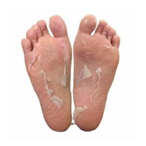 自然にはがれてプニプニ素足!【フットピーリングパックペロリンうれしい2回分入】角質ケア足の消臭足の臭い足の皮水虫