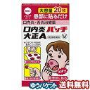【第3類医薬品】 大正製薬 口内炎パッチ大正A 20パッチ入