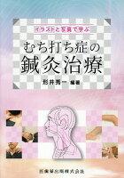 イラストと写真で学ぶむち打ち症の鍼灸治療