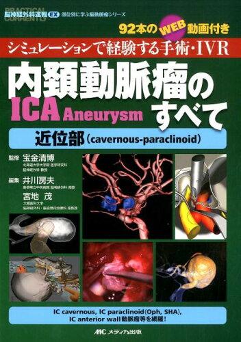 内頚動脈瘤(ICA Aneurysm)のすべてー近位部(cavernous-paraclinoid) [ 宝金清博 ]