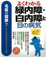 【バーゲン本】よくわかる緑内障・白内障と目の病気ー名医の図解