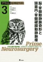 脳・脊髄動静脈奇形と頭蓋内・脊髄硬膜動静脈瘻