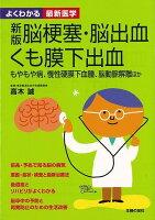【バーゲン本】脳梗塞・脳出血・くも膜下出血 新版ーよくわかる最新医学
