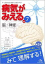 病気がみえる vol.7 脳・神経 [ 医療情報科学研究所 ...
