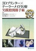3Dプリンター×テーラーメイド医療実践股関節手術