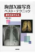 胸部X線写真ベスト・テクニック