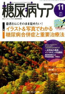 糖尿病ケア 14年11月号(11-11)