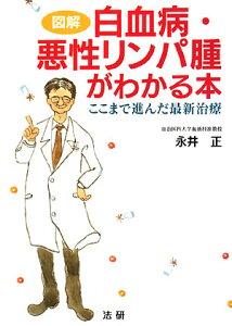 【送料無料】図解白血病・悪性リンパ腫がわかる本 [ 永井正 ]