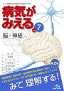 [送料無料] (第2版)メディックメディア病気がみえる vol.7 脳・神経 【11/30発売!!】