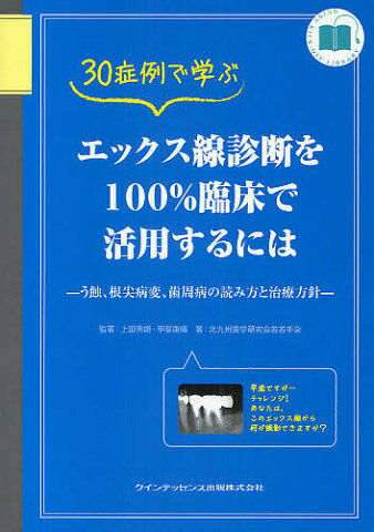 30症例で学ぶエックス線診断を100%臨床で活用するには う蝕、根尖病変、歯周病の読み方と治療方針【合計3000円以上で送料無料】