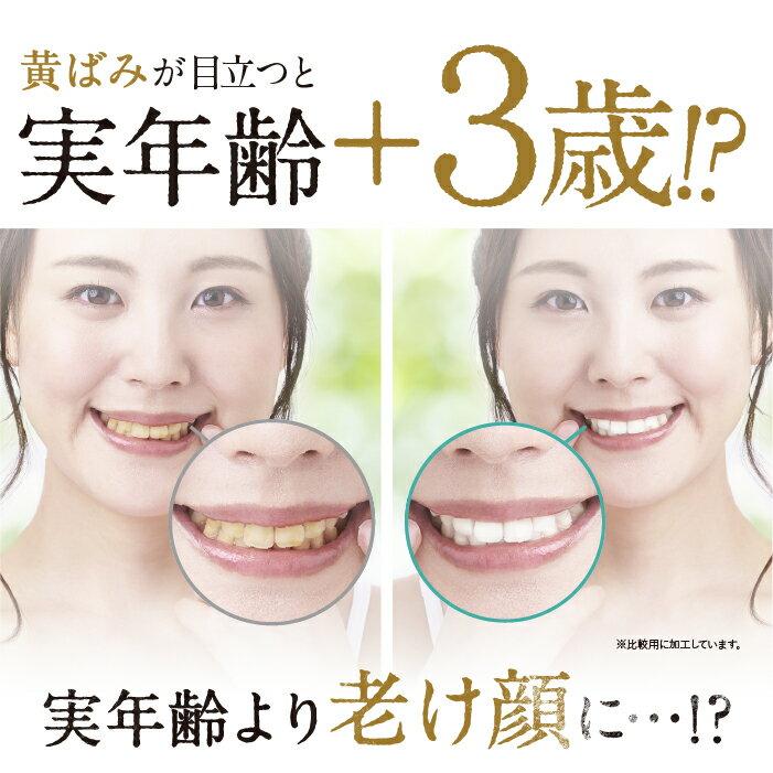 白く シート する を 歯 0円で歯を白くする裏技
