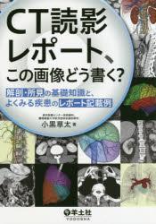 CT読影レポート、この画像どう書く? 解剖・所見の基礎知識と、よくみる疾患のレポート記載例
