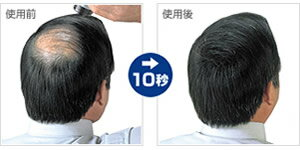 10秒で薄毛をカバー