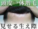 【頭皮一体増毛】ヘアーインプラントEX フロント用(男性かつら)(※装着には別途、強力テープか…