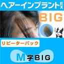 (リピーターパック)ヘアーインプラントEX M字用BIG(部分かつら)※強力テープ貼り付け済み