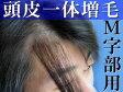 ヘアーインプラントEX M字部用(男性用かつら)※LFSテープ貼り付け済み