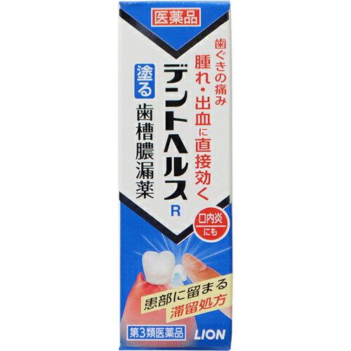 口中, 第三類医薬品 3 R 10g