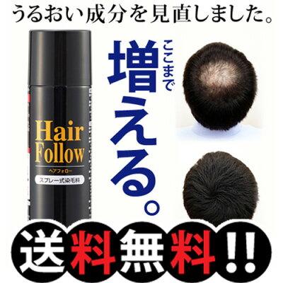 ヘアフォロー ブラック(ヘアーフォロー 薄毛カバー 増毛スプレー 薄毛 はげ 悩み 対策 髪の毛 ...