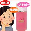 美杏香ピンクローション【赤ら顔、頬の赤み、アトピー、化粧水】