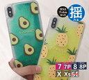 送料無料【ガラスフィルムセット】■トロピカルモチーフケース■iPhone7 ケース キラキラ iPhone……