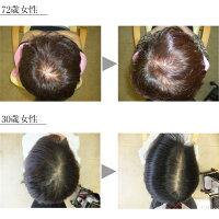 さらさら女髪美シャンプー250mlボトル薄毛予防ハリコシボリューム発毛促進細胞賦活血流促進女性レディースプレゼント頭皮ボタニカルサラサラキレイ潤い